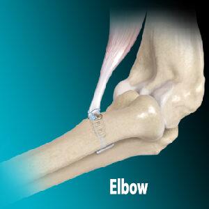 Elbow - Alon Medical Technology Education