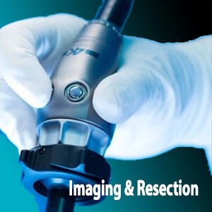 Imaging and Resection - Alon Medical Technology serving Louisiana and Mississippi