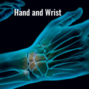 arthrex-hand-wrist