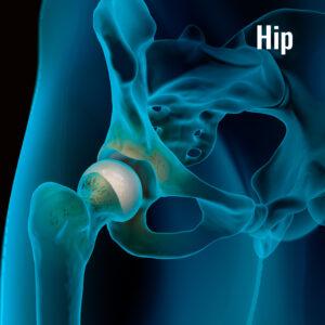 arthrex-hip